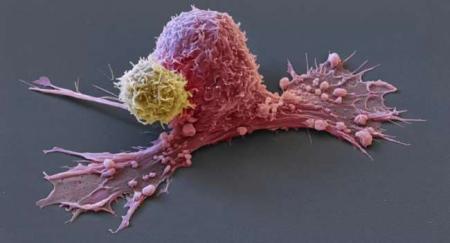 «Наследуют только мутации»: онколог рассказал о передаче рака по наследству
